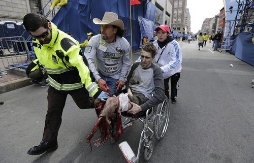 Пострадавший во время теракта в Бостоне